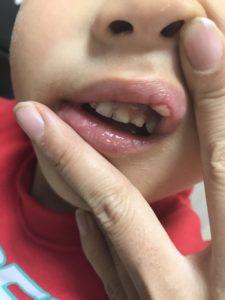 子供が歯医者の麻酔で唇を噛んでしまった時の5日目の治ってきた画像