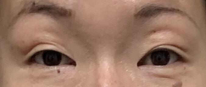 東京中央美容外科で全切開・まぶたのたるみ・脂肪とりをする前のビフォー画像