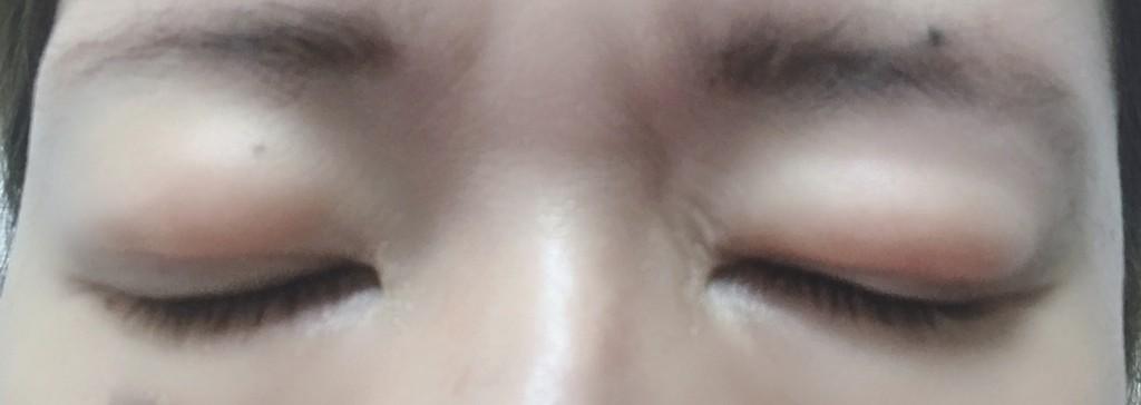二重全切開前の瞼の脂肪画像