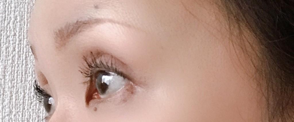 瞼の脂肪とりした後のアフター経過画像
