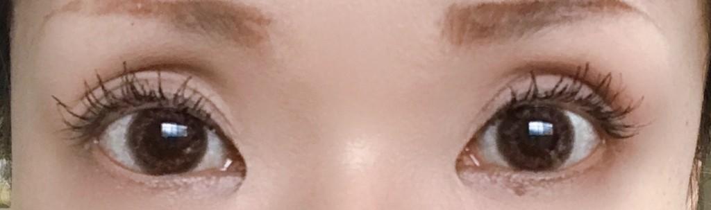 東京中央美容外科・全切開の4ヶ月経過後の化粧あり画像