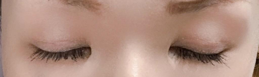全切開から4ヶ月後目を閉じた状態(閉眼時)