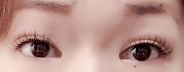 全切開する前の重たい瞼にマツエクした画像