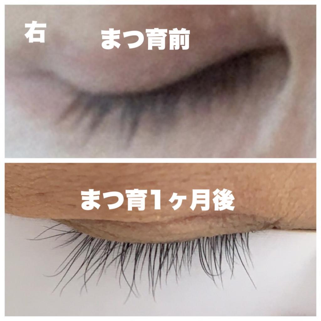 まつげが伸びたエマーキットの比較・使用前と1ヶ月後のまつ毛の画像