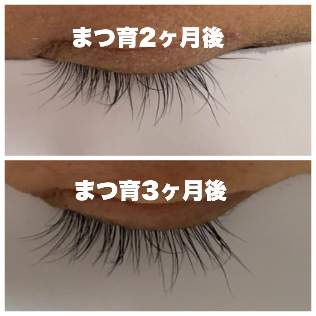 まつげが伸びたエマーキットまつげ美容液の比較・使用前と2ヶ月後と3ヶ月後のまつ毛の画像画像