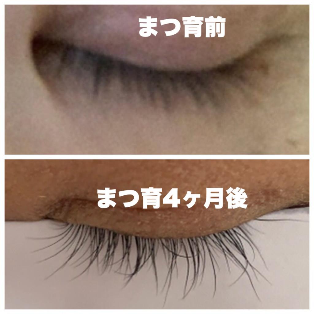 まつ毛が伸びた・エマーキット美容液使用前と4ヶ月使用後のまつ毛の画像