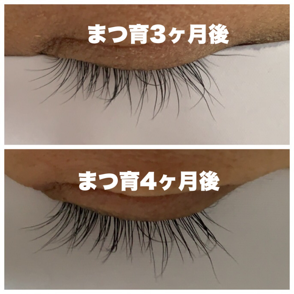 まつげが伸びたエマーキットの比較・使用前と3ヶ月後と4ヶ月後のまつ毛の画像画像