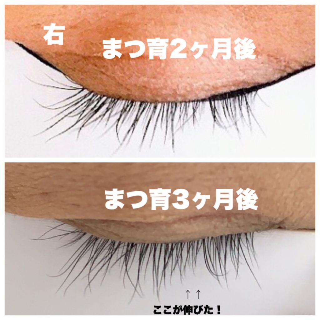 まつげが伸びたエマーキットの比較・使用前と2ヶ月後と3ヶ月後のまつ毛の画像画像右目