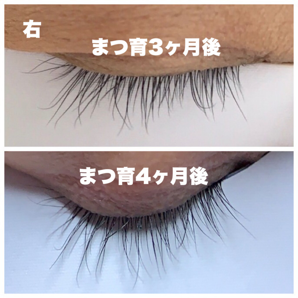 まつげが伸びたエマーキットの比較・使用前と3ヶ月後と4ヶ月後の右目まつ毛の画像画像