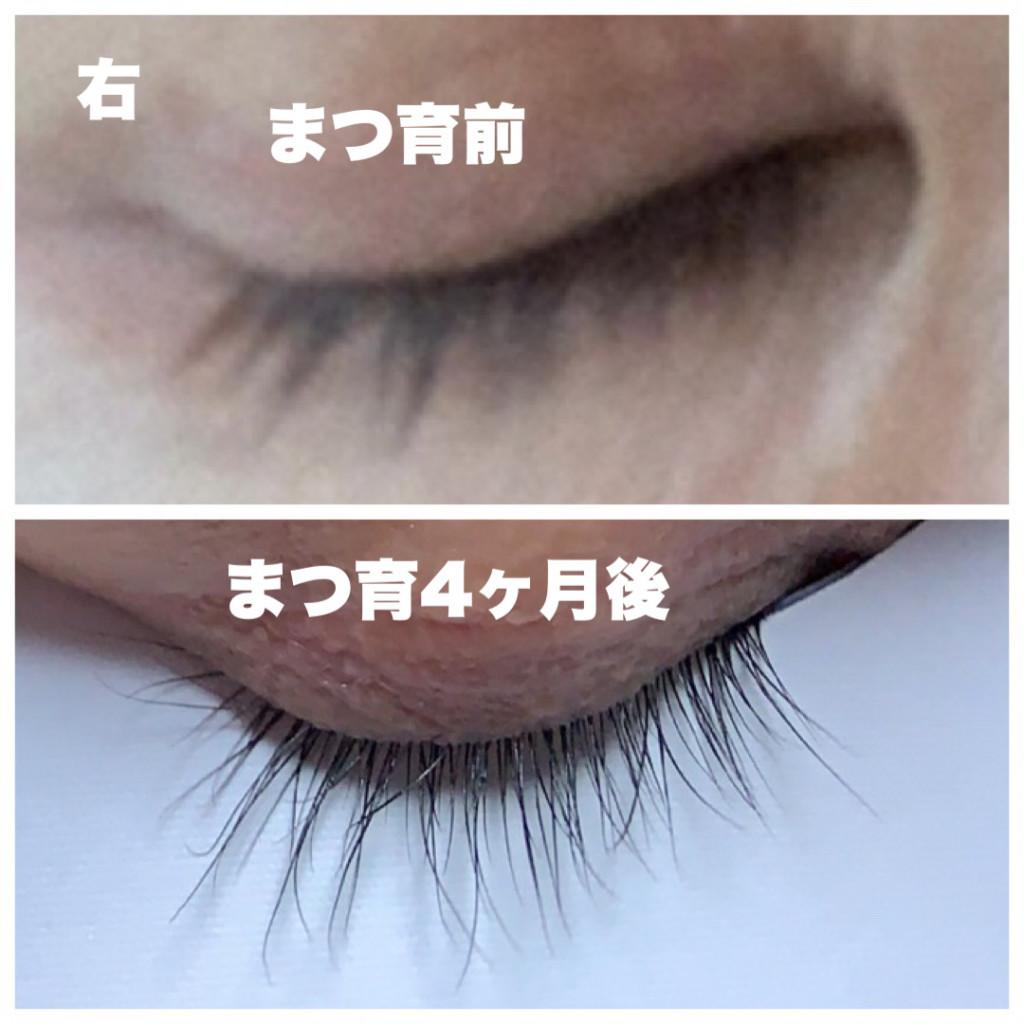 まつ毛美容液使用前からエマーキットを4ヶ月使用したまつ毛が伸びた画像